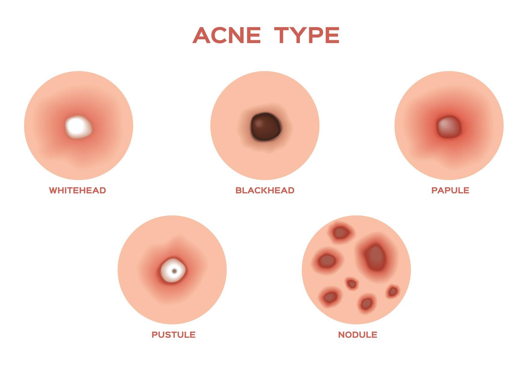 acne_types-1